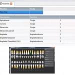 QML Integrado con Base de Datos Velneo (Odontograma) 1